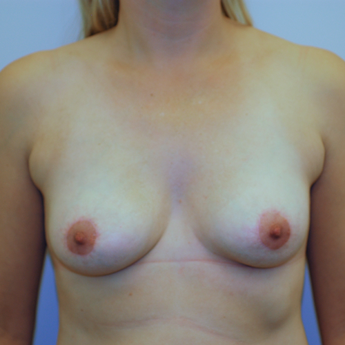Breast Implant Revision #506