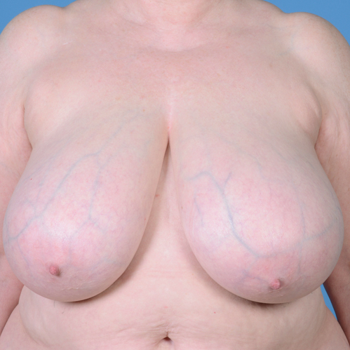 Breast Reduction #195