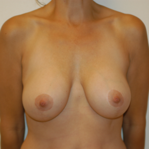 Breast Implant Revision #101