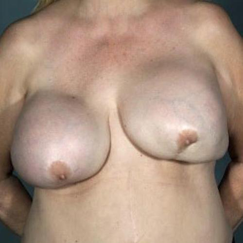 Breast Implant Revision #511