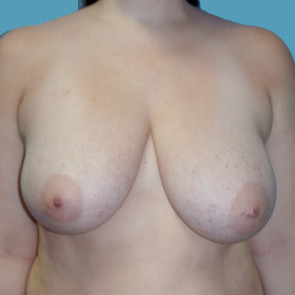 Breast Reduction #603