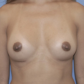 Breast Augmentation #234