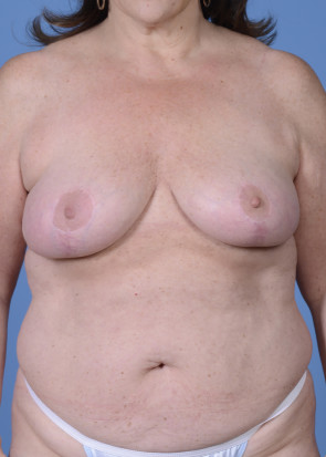 Breast Reduction #604