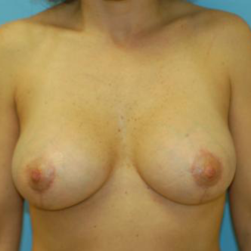 Correction of Capsular Contracture #402