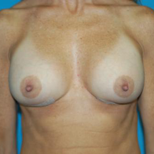 Correction of Capsular Contracture #401