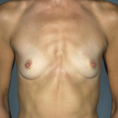 Breast Augmentation #128