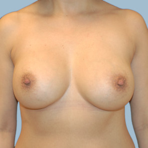 Breast Augmentation #107