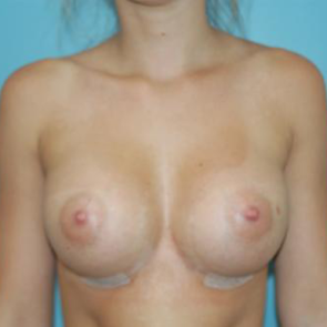 Breast Augmentation #110