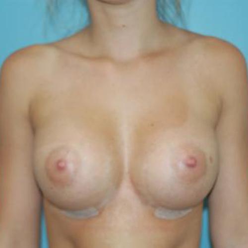 Breast Augmentation #110