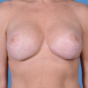 Breast Implant Revision #510