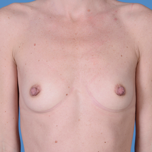 Breast Augmentation #205