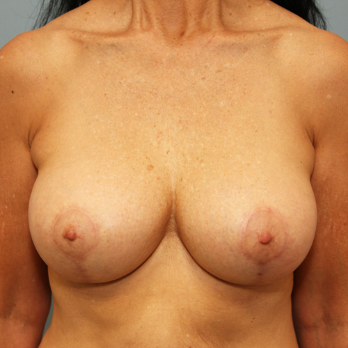 Correction of Capsular Contracture #503