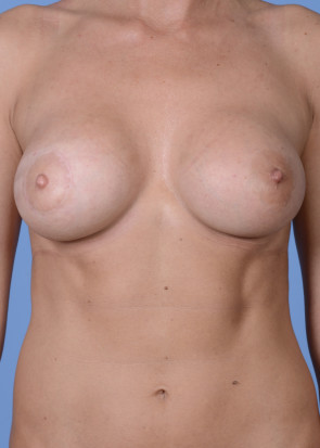 Breast Augmentation #235