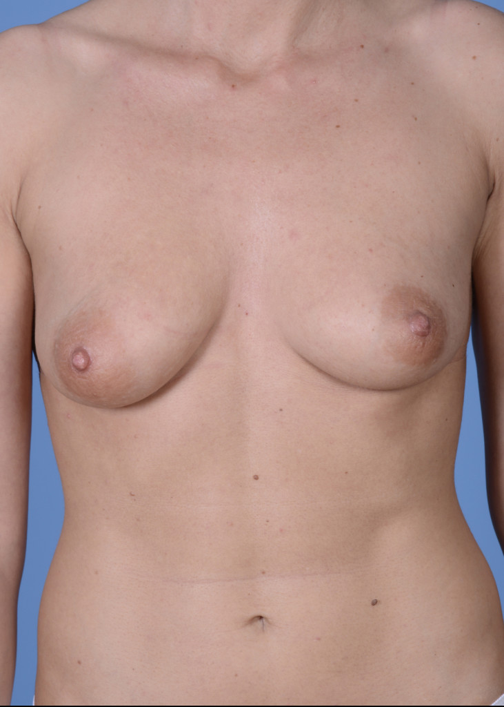 Breast Augmentation #235
