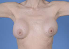Breast Implant Revision #504
