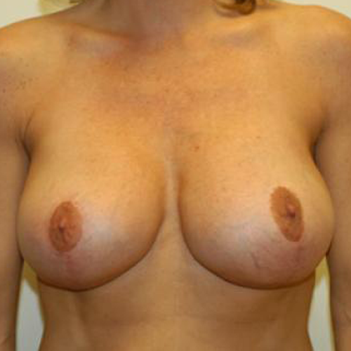 Breast Implant Revision #508