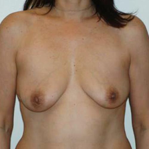 Breast Augmentation #104