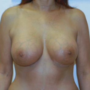 Breast Augmentation #104
