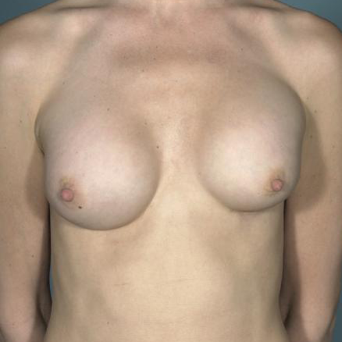 Breast Implant Revision #509