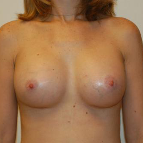 Breast Augmentation #118