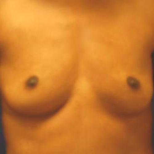 Breast Augmentation #108