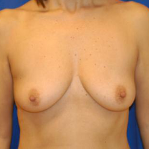 Breast Augmentation #120