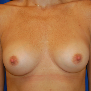 Breast Augmentation #106