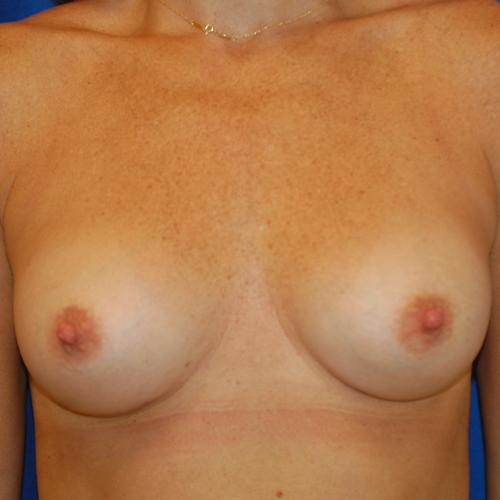 Breast Augmentation #106