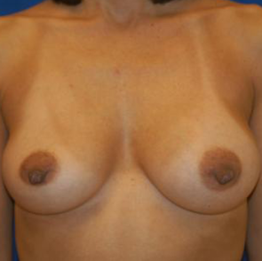Breast Implant Revision #512