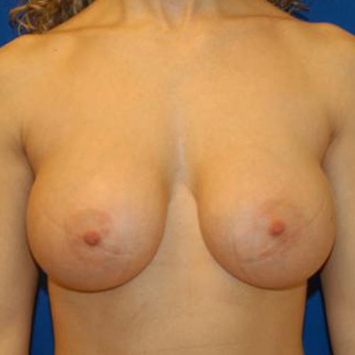 Breast Implant Revision #513