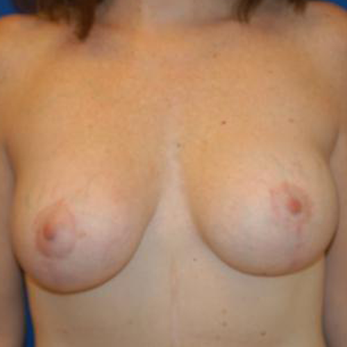 Breast Implant Revision #514