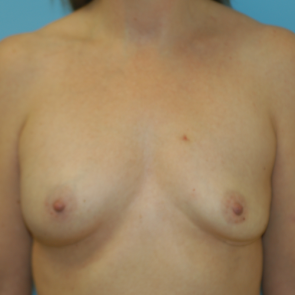 Breast Implant Revision #515