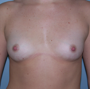 Breast Augmentation #126