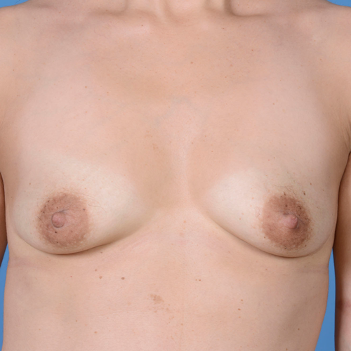 Breast Augmentation #216