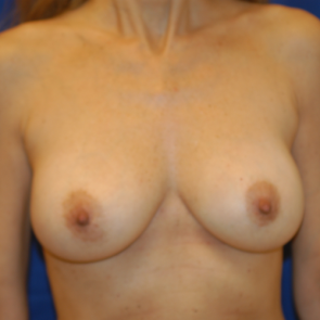 Breast Implant Revision #526