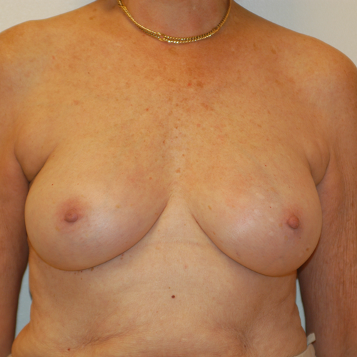 Breast Implant Revision #404