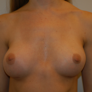 Breast Implant Revision #505