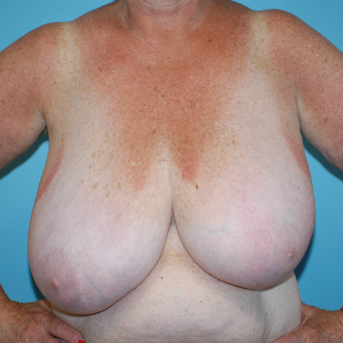 Breast Reduction #602