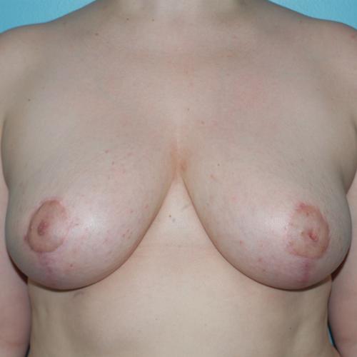 Breast Lift #603