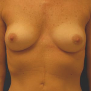 Breast Augmentation #109