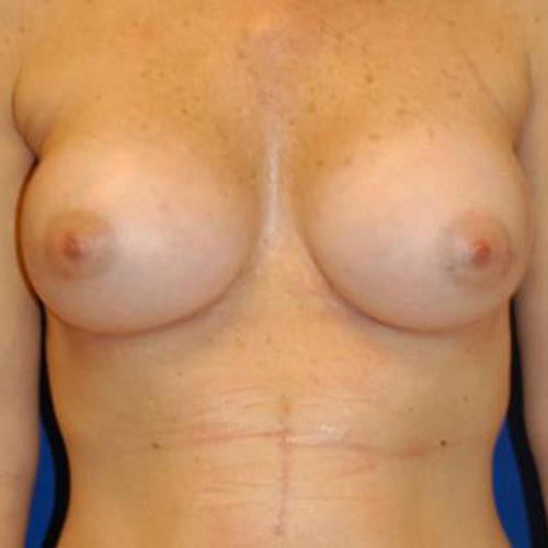 Breast Augmentation #109