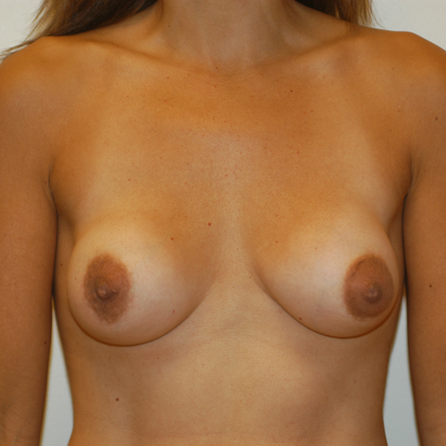 Breast Implant Revision #407