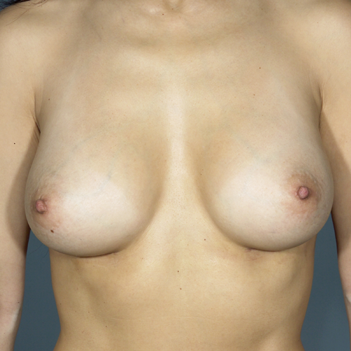 Breast Implant Revision #502