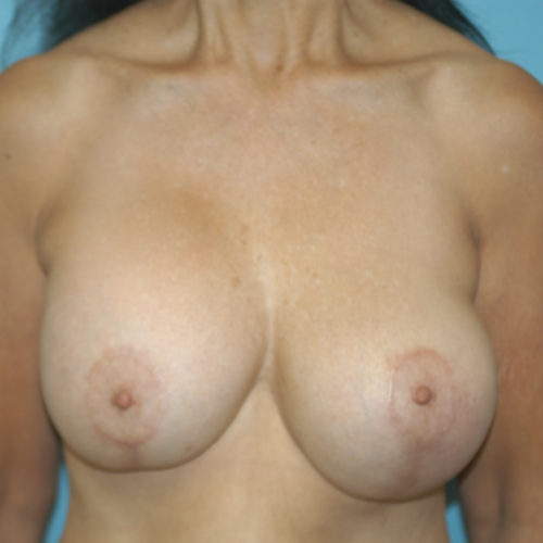 Breast Implant Revision #503