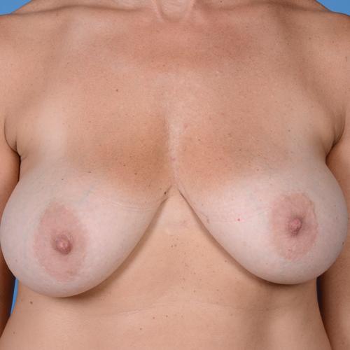 Breast Augmentation #702