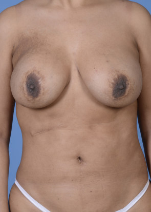 Breast  Augmentation with Lift #804