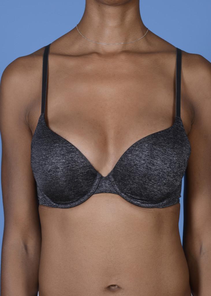 AM #103 postop AP with bra