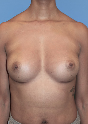 Breast Augmentation #103