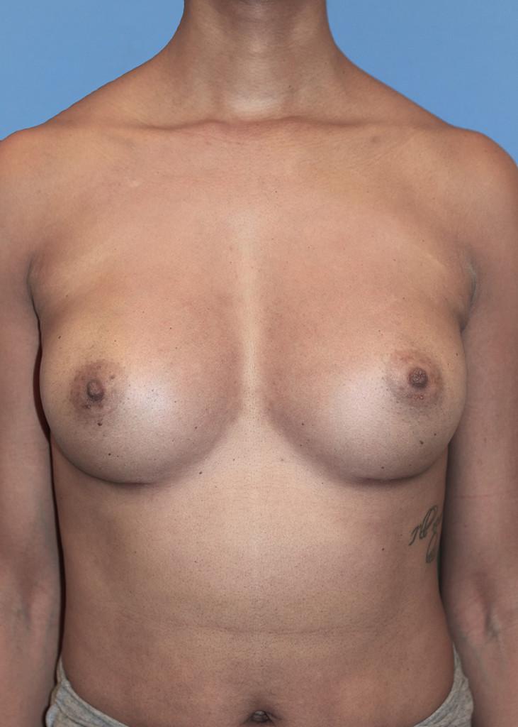 Breast Augmentation #103