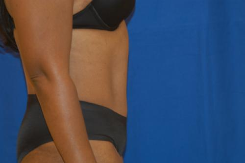 Liposuction before and after with tummy tuck